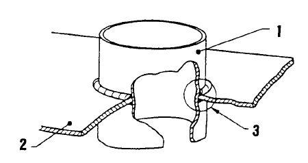 Assemblage augmentant l'arrachement lamellaire 3